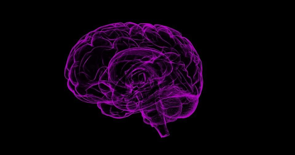 relacion entre Alzheimer y Sindrome de Down persona discapacidad discapacitado