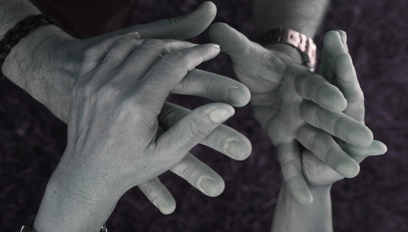 personas con sordoceguera discapacidad discapacitado ayuda